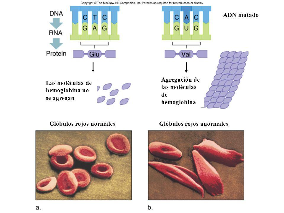 Glóbulos rojos normales Glóbulos rojos anormales