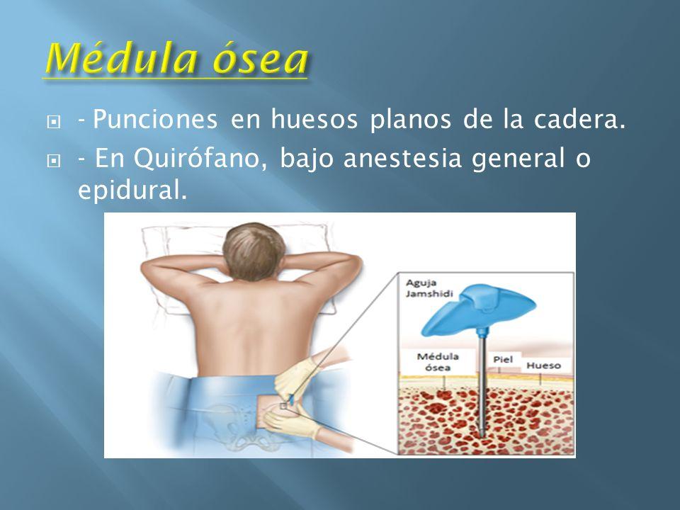 Médula ósea - Punciones en huesos planos de la cadera.