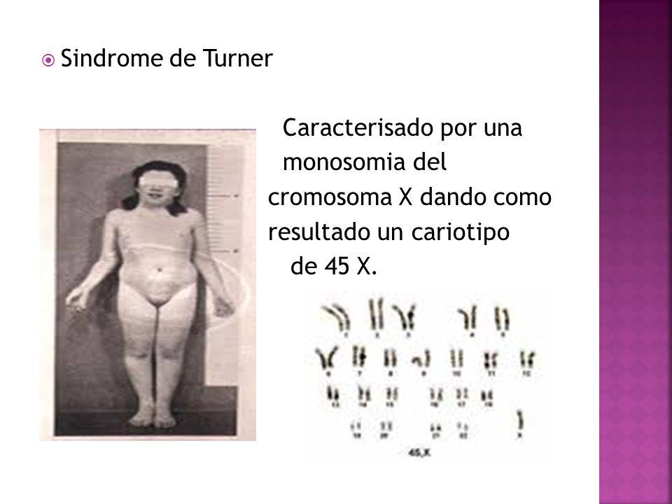 Sindrome de Turner Caracterisado por una. monosomia del. cromosoma X dando como. resultado un cariotipo.