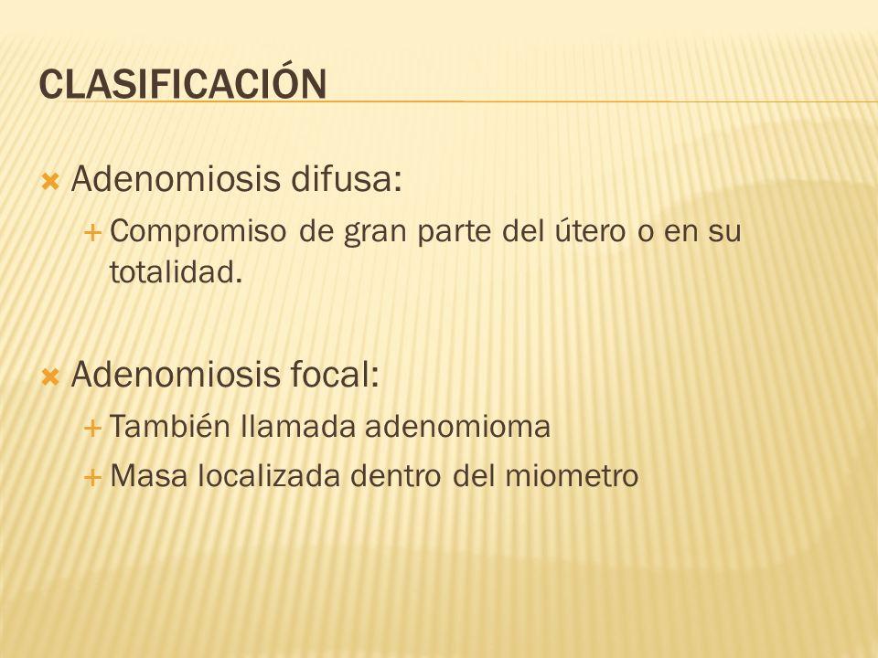 CLASIFICACIÓN Adenomiosis difusa: Adenomiosis focal: