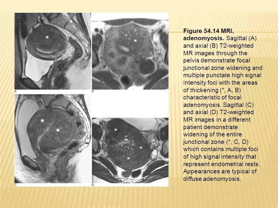 Figure 54. 14 MRI, adenomyosis