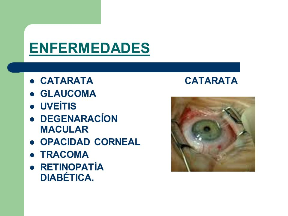 ENFERMEDADES CATARATA GLAUCOMA UVEÍTIS DEGENARACÍON MACULAR