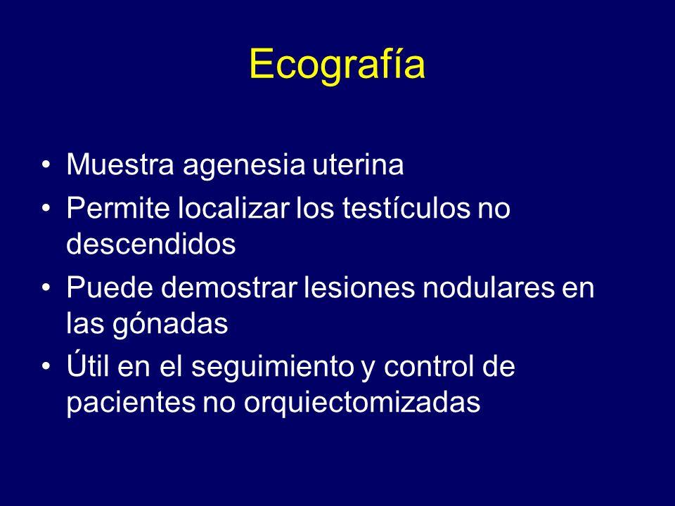 Ecografía Muestra agenesia uterina