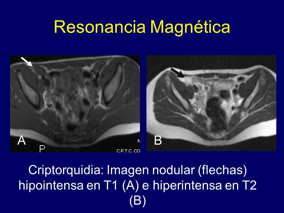 Resonancia Magnética A B