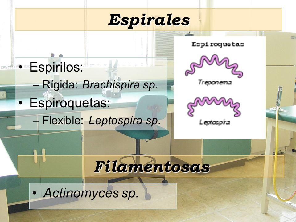 Espirales Filamentosas Espirilos: Espiroquetas: Actinomyces sp.