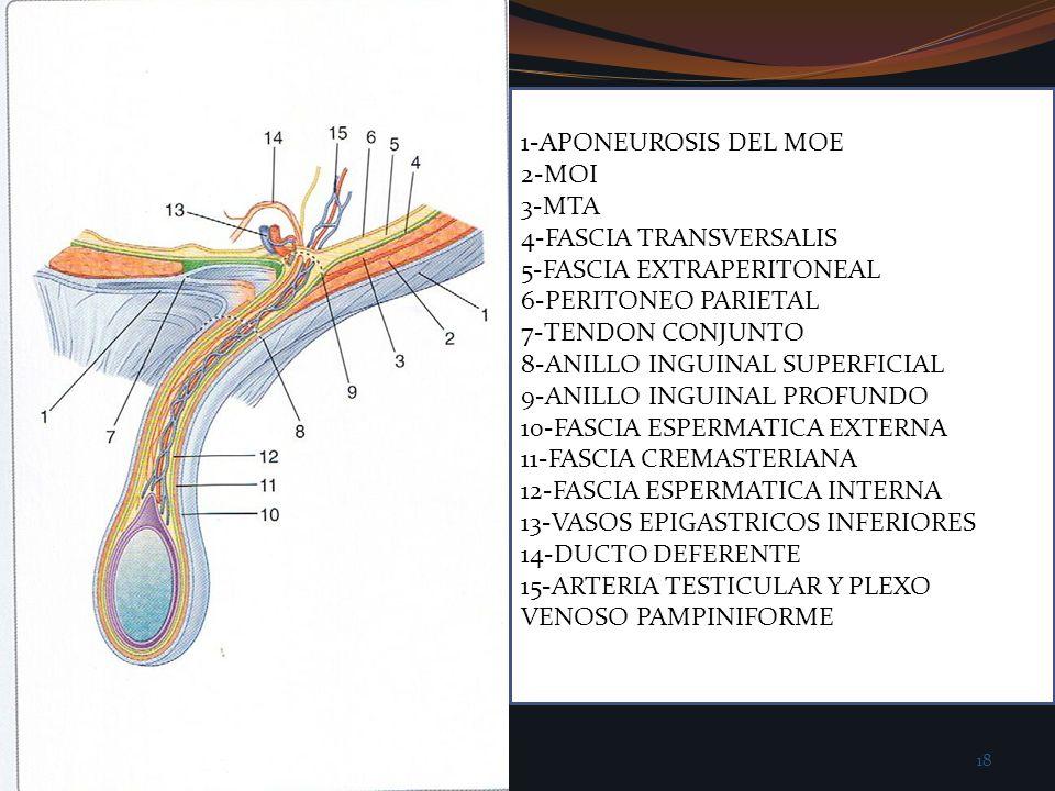 1-APONEUROSIS DEL MOE 2-MOI. 3-MTA. 4-FASCIA TRANSVERSALIS. 5-FASCIA EXTRAPERITONEAL. 6-PERITONEO PARIETAL.