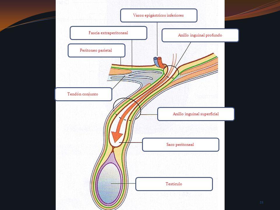 Vasos epigástricos inferiores