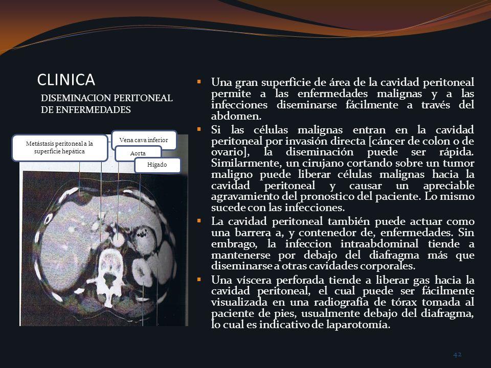 Metástasis peritoneal a la superficie hepática