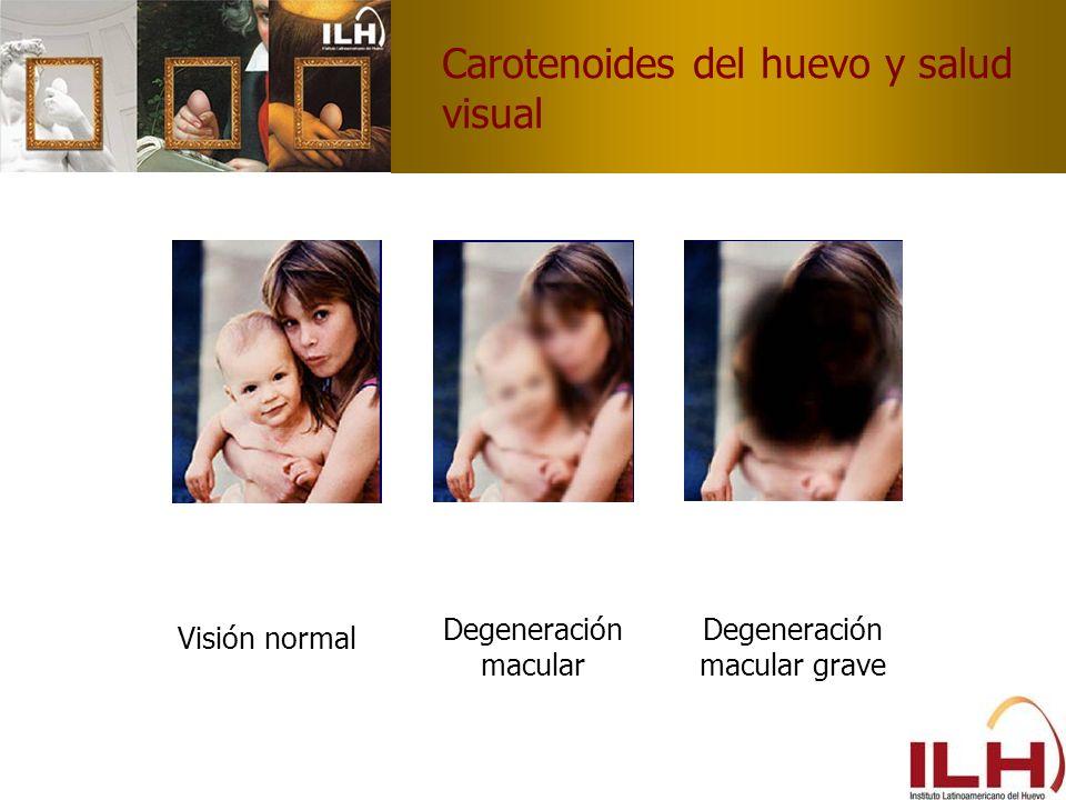 Carotenoides del huevo y salud visual