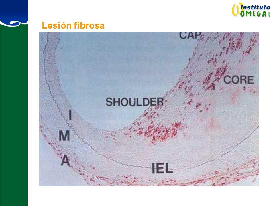 Lesión fibrosa