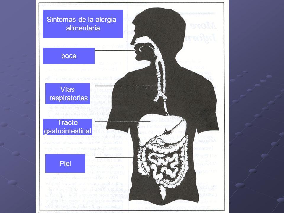 Sintomas de la alergia alimentaria boca Vías respiratorias Tracto gastrointestinal Piel