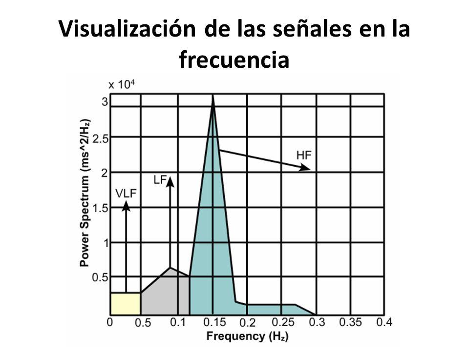 Visualización de las señales en la frecuencia