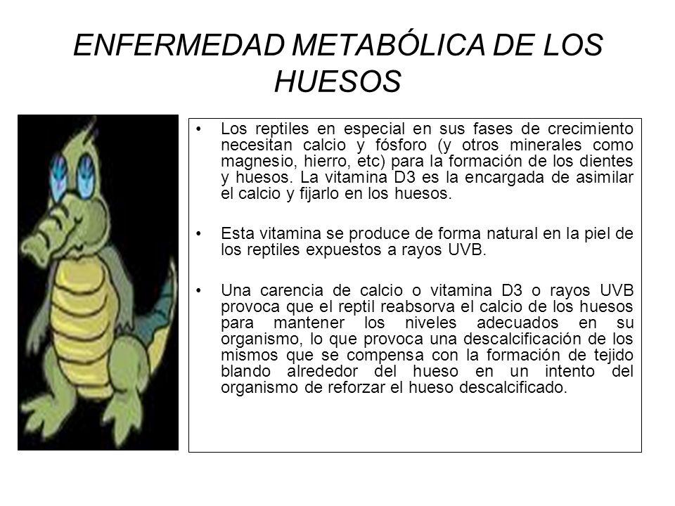 ENFERMEDAD METABÓLICA DE LOS HUESOS