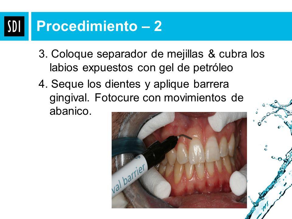Procedimiento – 2 3. Coloque separador de mejillas & cubra los labios expuestos con gel de petróleo.