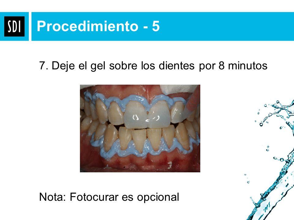 Procedimiento - 5 7. Deje el gel sobre los dientes por 8 minutos