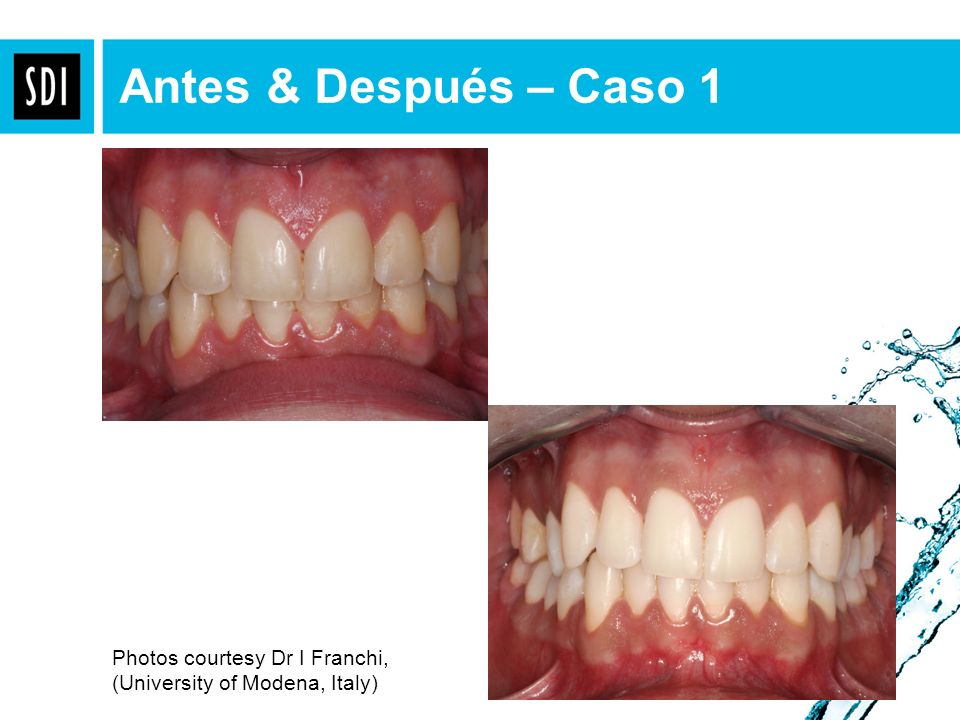 Antes & Después – Caso 1 Procedure - 4