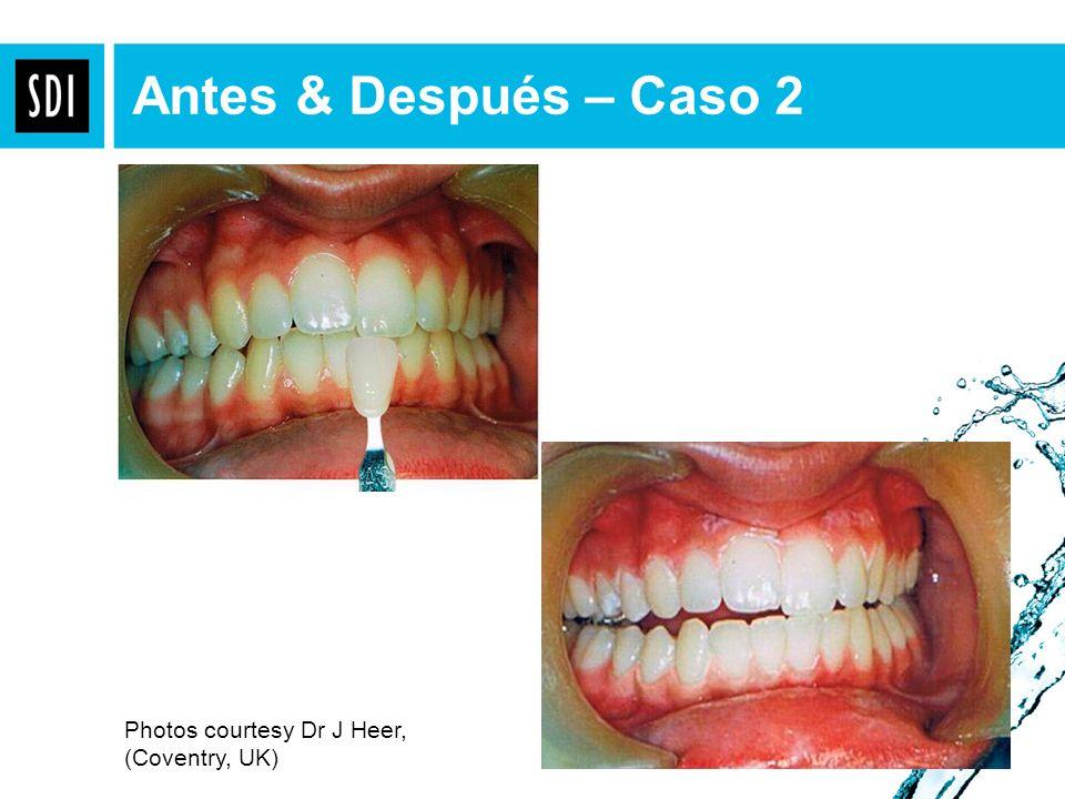 Antes & Después – Caso 2 Photos courtesy Dr J Heer, (Coventry, UK)
