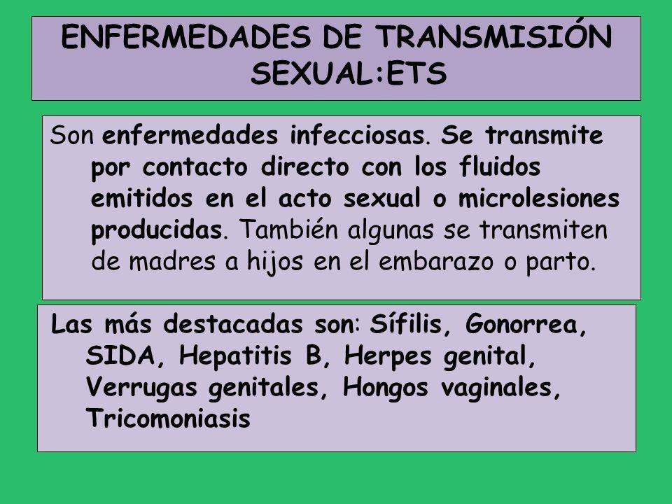ENFERMEDADES DE TRANSMISIÓN SEXUAL:ETS