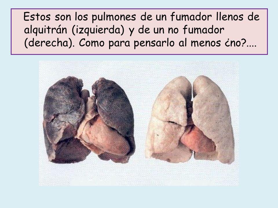 Estos son los pulmones de un fumador llenos de alquitrán (izquierda) y de un no fumador (derecha).