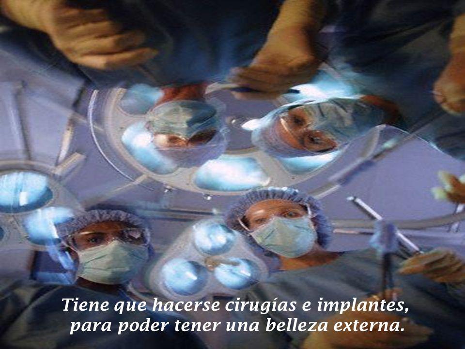 Tiene que hacerse cirugías e implantes, para poder tener una belleza externa.