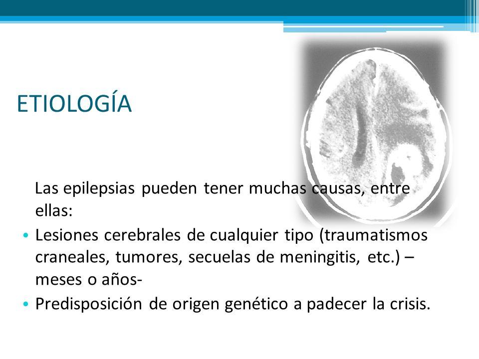 ETIOLOGÍA Las epilepsias pueden tener muchas causas, entre ellas: