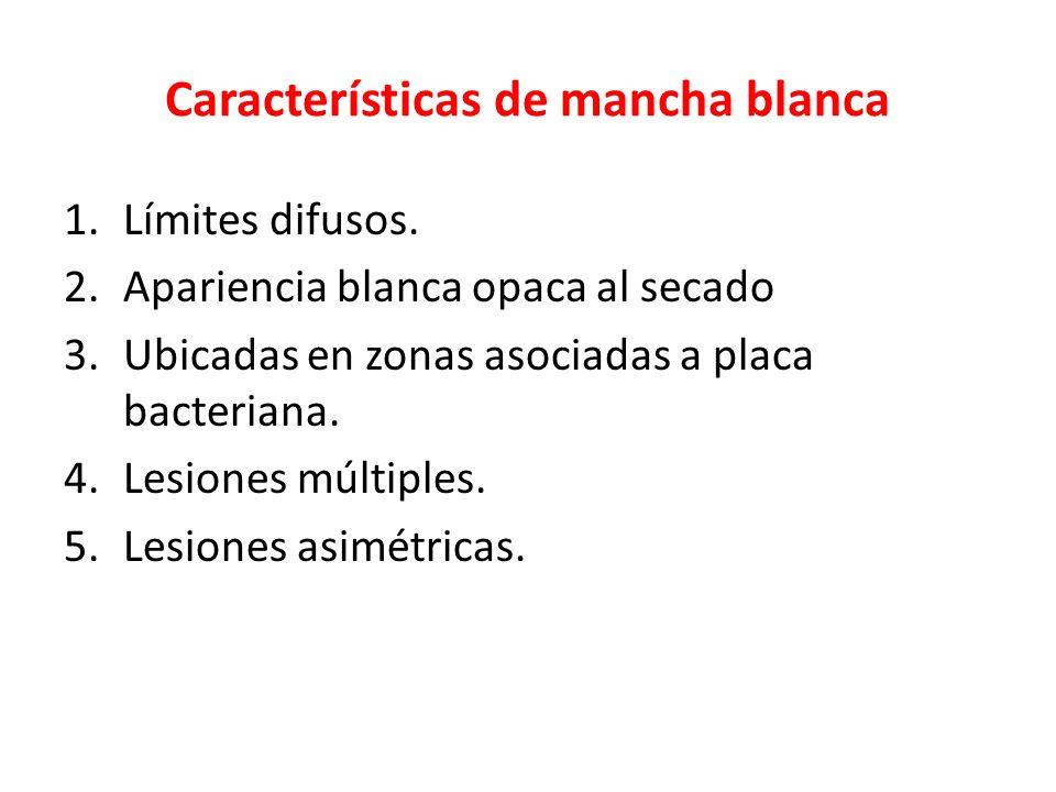 Características de mancha blanca