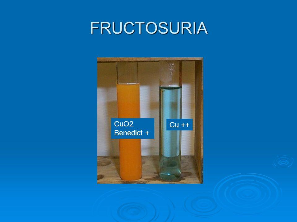 FRUCTOSURIA CuO2 Benedict + Cu ++