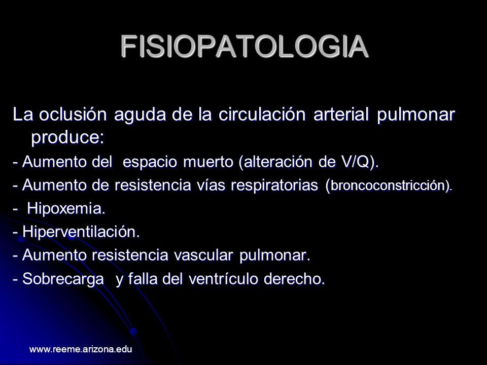 FISIOPATOLOGIA La oclusión aguda de la circulación arterial pulmonar produce: - Aumento del espacio muerto (alteración de V/Q).