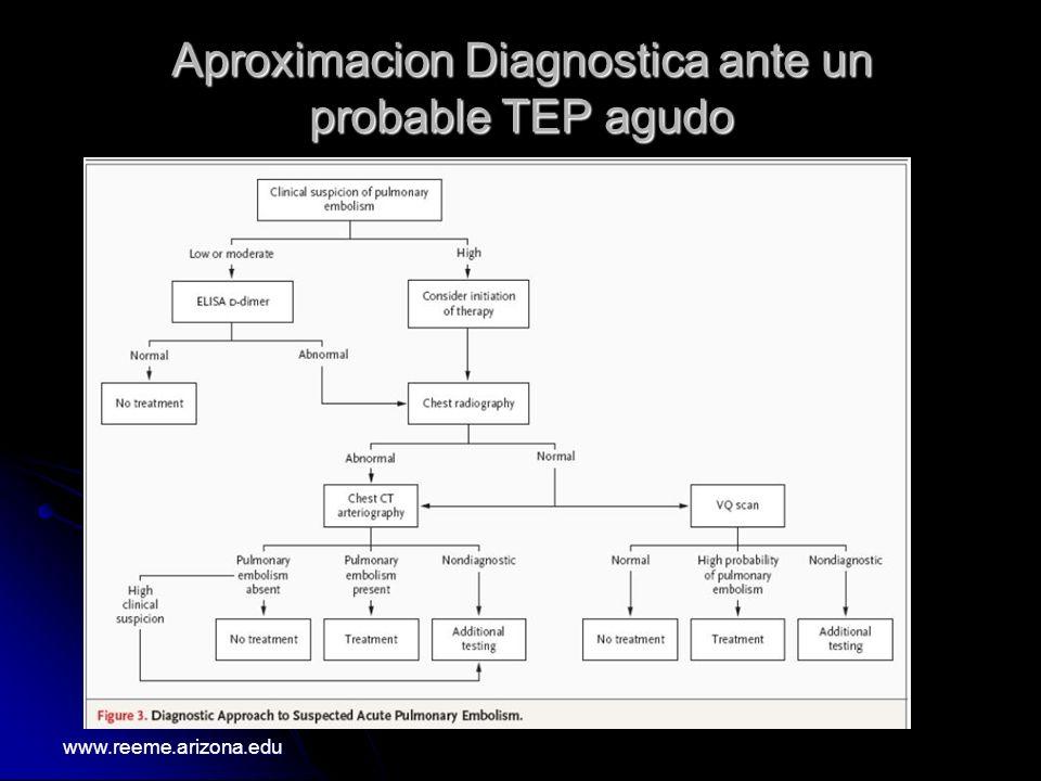 Aproximacion Diagnostica ante un probable TEP agudo