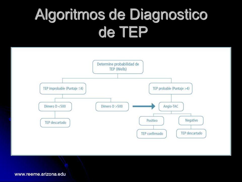 Algoritmos de Diagnostico de TEP
