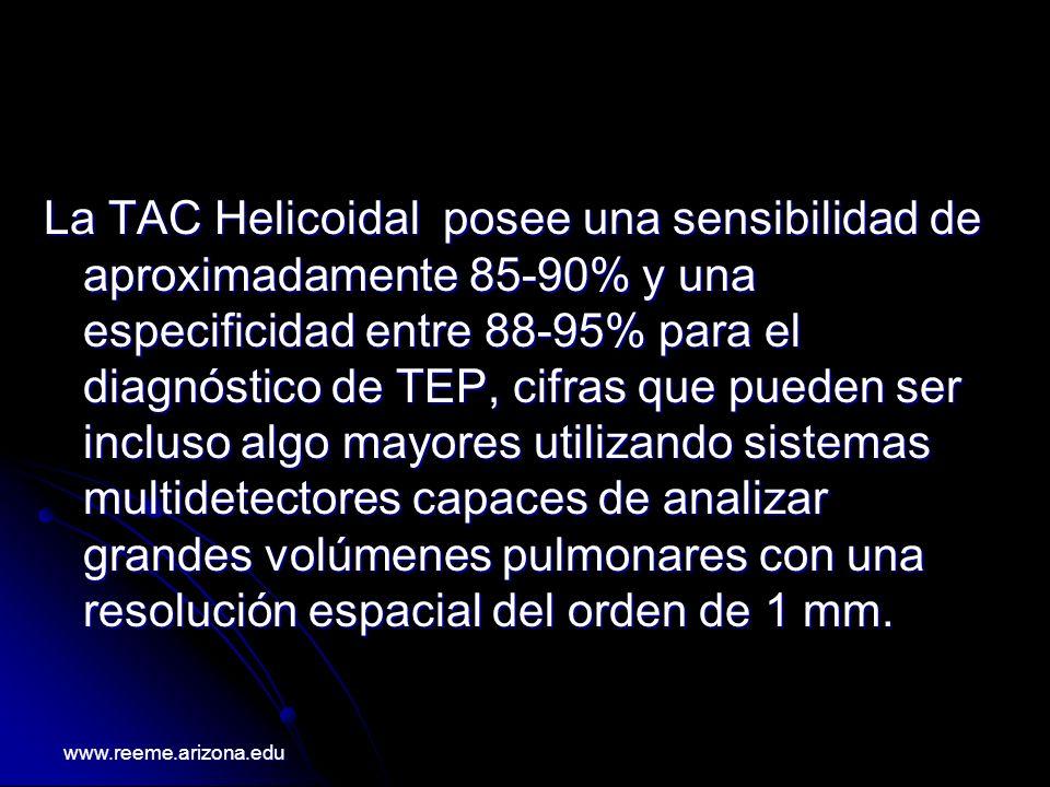 La TAC Helicoidal posee una sensibilidad de aproximadamente 85-90% y una especificidad entre 88-95% para el diagnóstico de TEP, cifras que pueden ser incluso algo mayores utilizando sistemas multidetectores capaces de analizar grandes volúmenes pulmonares con una resolución espacial del orden de 1 mm.