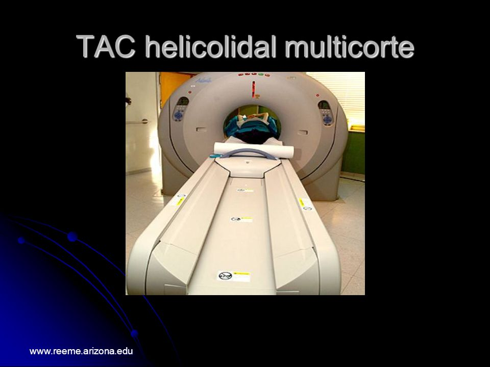 TAC helicolidal multicorte
