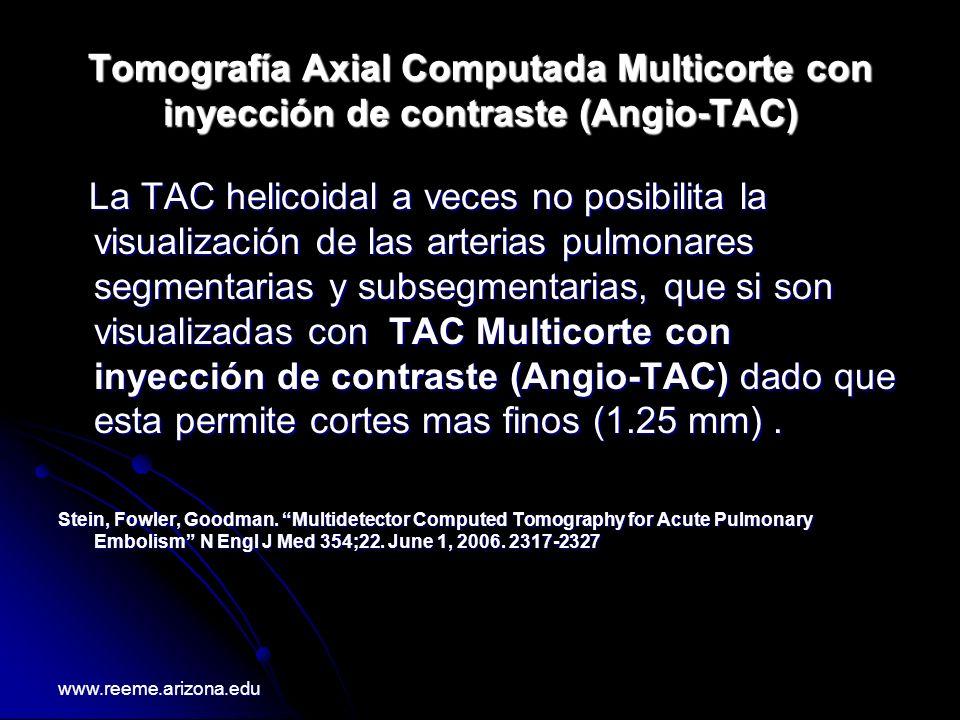 Tomografía Axial Computada Multicorte con inyección de contraste (Angio-TAC)