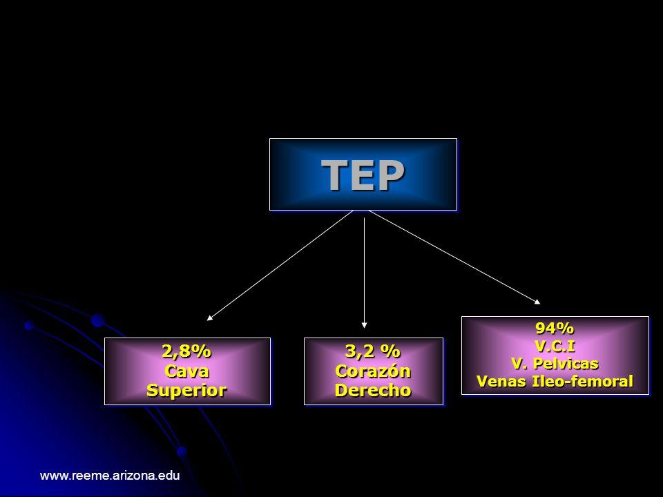 TEP 2,8% Cava Superior 3,2 % Corazón Derecho 94% V.C.I V. Pelvicas