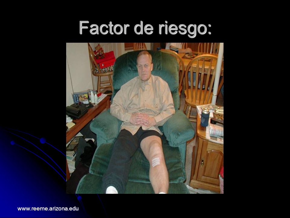Factor de riesgo: www.reeme.arizona.edu