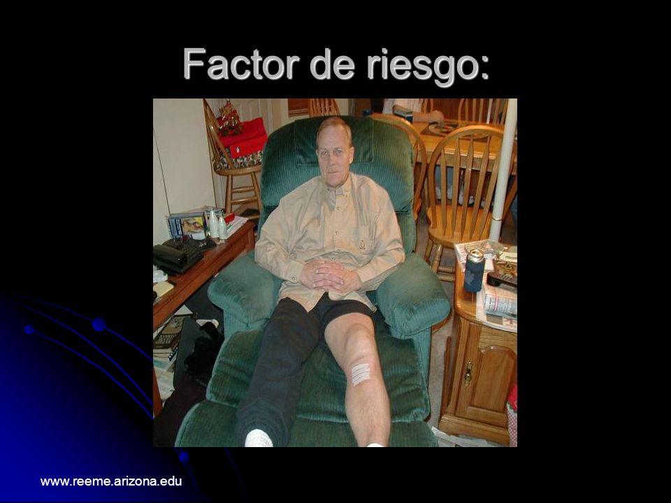 Factor de riesgo: www.reeme.arizona.edu