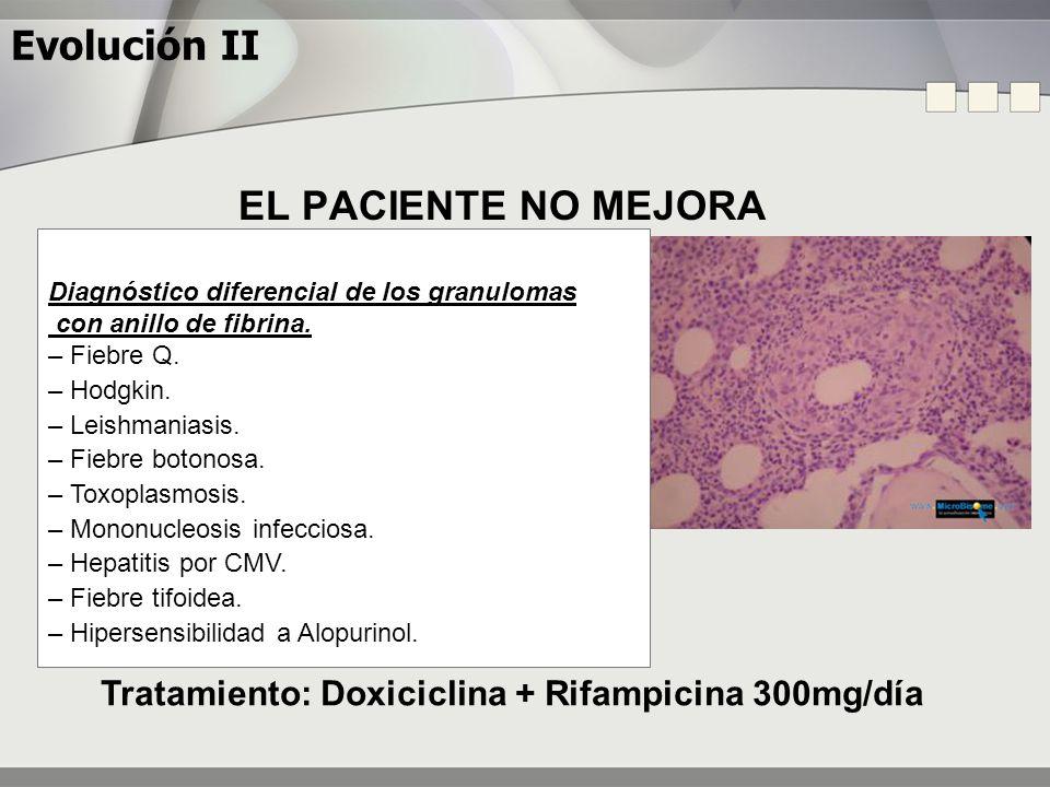 Tratamiento: Doxiciclina + Rifampicina 300mg/día