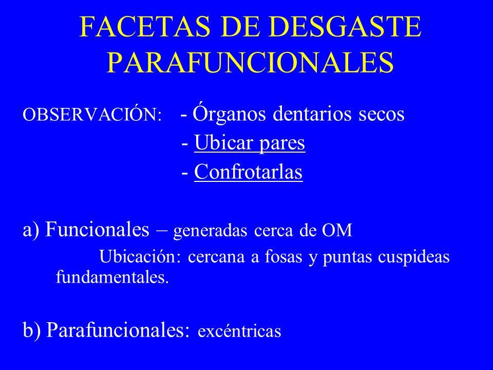 FACETAS DE DESGASTE PARAFUNCIONALES