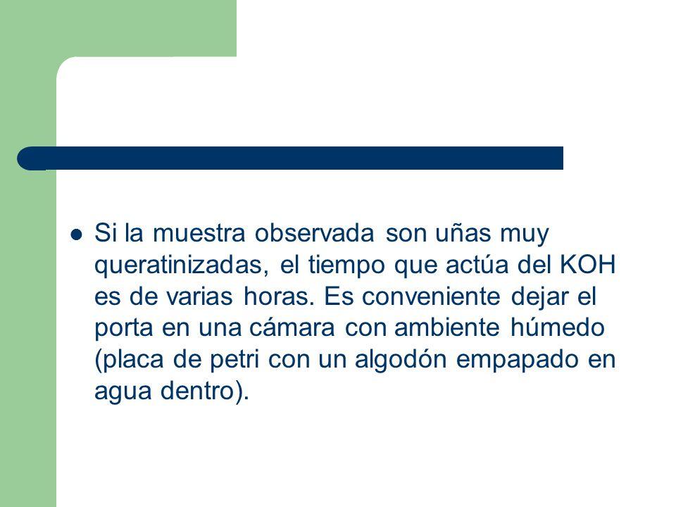 Si la muestra observada son uñas muy queratinizadas, el tiempo que actúa del KOH es de varias horas.