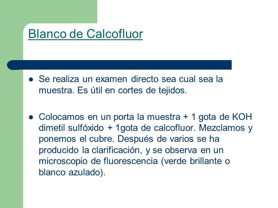 Blanco de Calcofluor Se realiza un examen directo sea cual sea la muestra. Es útil en cortes de tejidos.