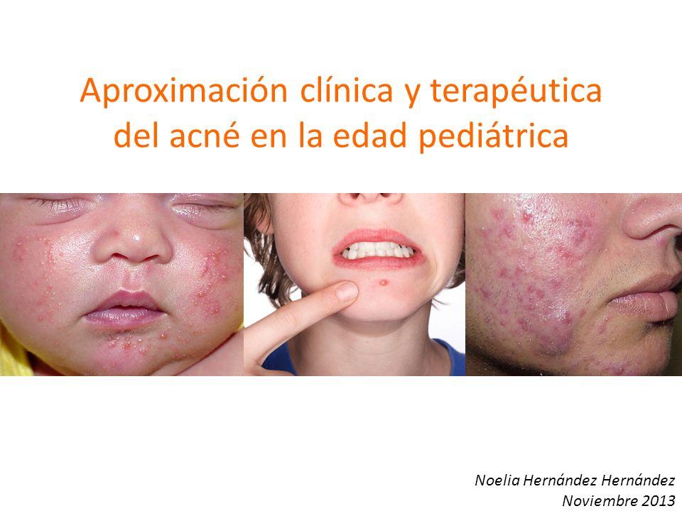 Aproximación clínica y terapéutica del acné en la edad pediátrica