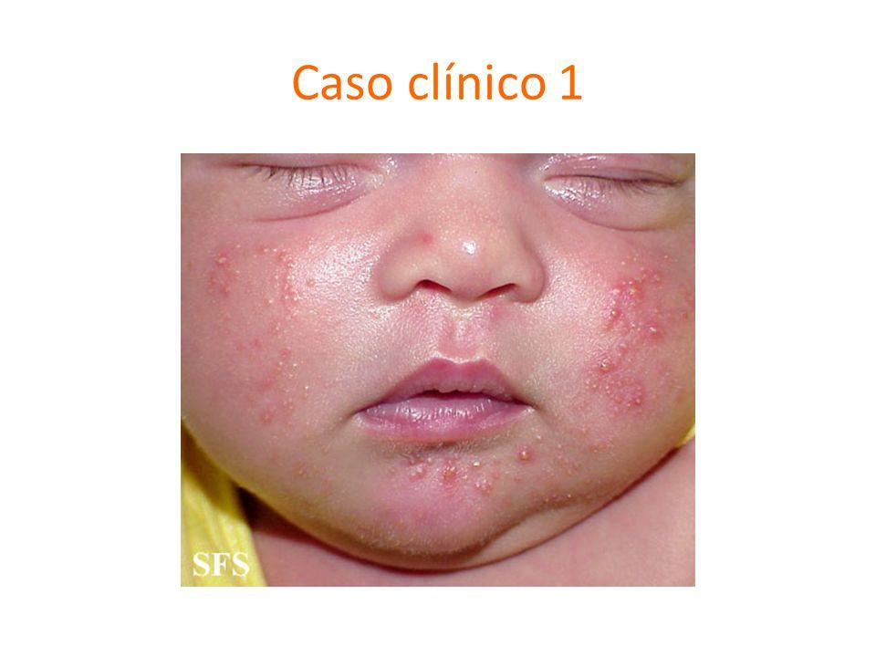 Caso clínico 1 Acne neonatal (0-6 sem), no hacer nada