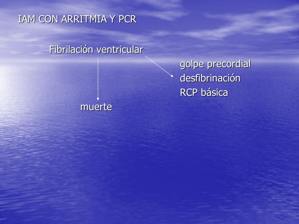 IAM CON ARRITMIA Y PCR Fibrilación ventricular golpe precordial desfibrinación RCP básica muerte