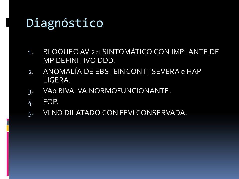 Diagnóstico BLOQUEO AV 2:1 SINTOMÁTICO CON IMPLANTE DE MP DEFINITIVO DDD. ANOMALÍA DE EBSTEIN CON IT SEVERA e HAP LIGERA.