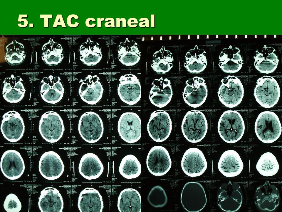 5. TAC craneal