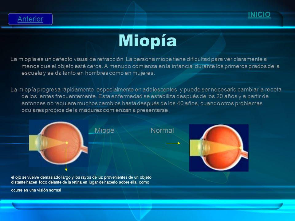 Miopía INICIO Anterior Miope Normal