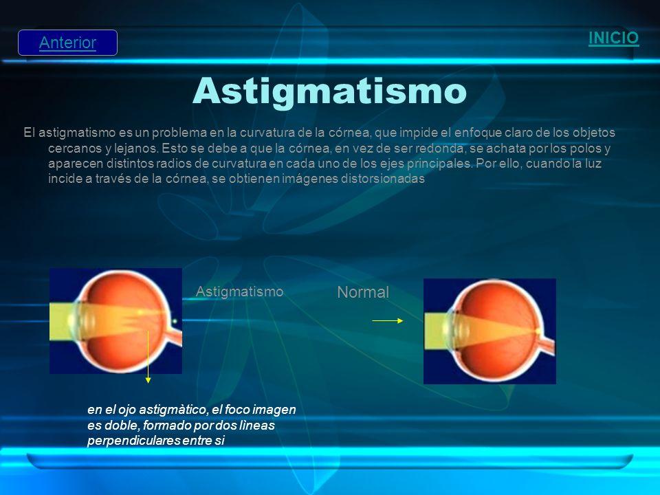 Astigmatismo INICIO Anterior Normal Astigmatismo