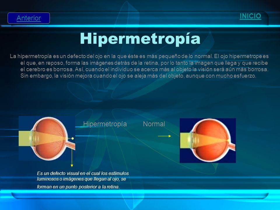 Hipermetropía INICIO Anterior Hipermetropía Normal