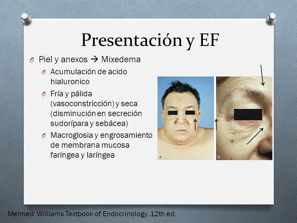 Presentación y EF Piel y anexos  Mixedema