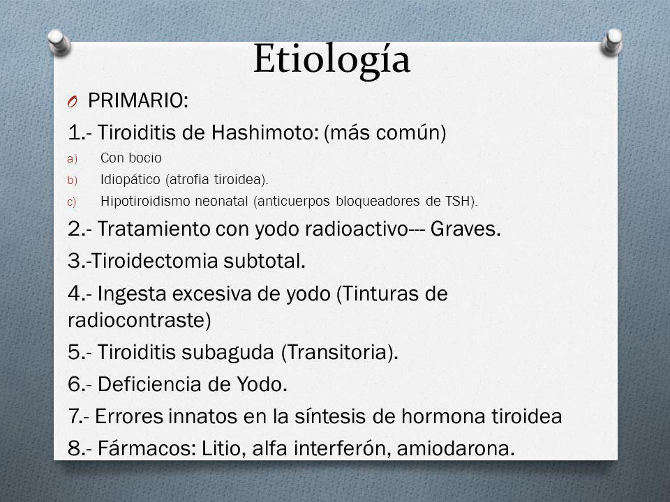 Etiología PRIMARIO: 1.- Tiroiditis de Hashimoto: (más común)